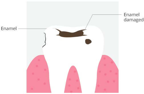 causes-of-tooth-sensitivity